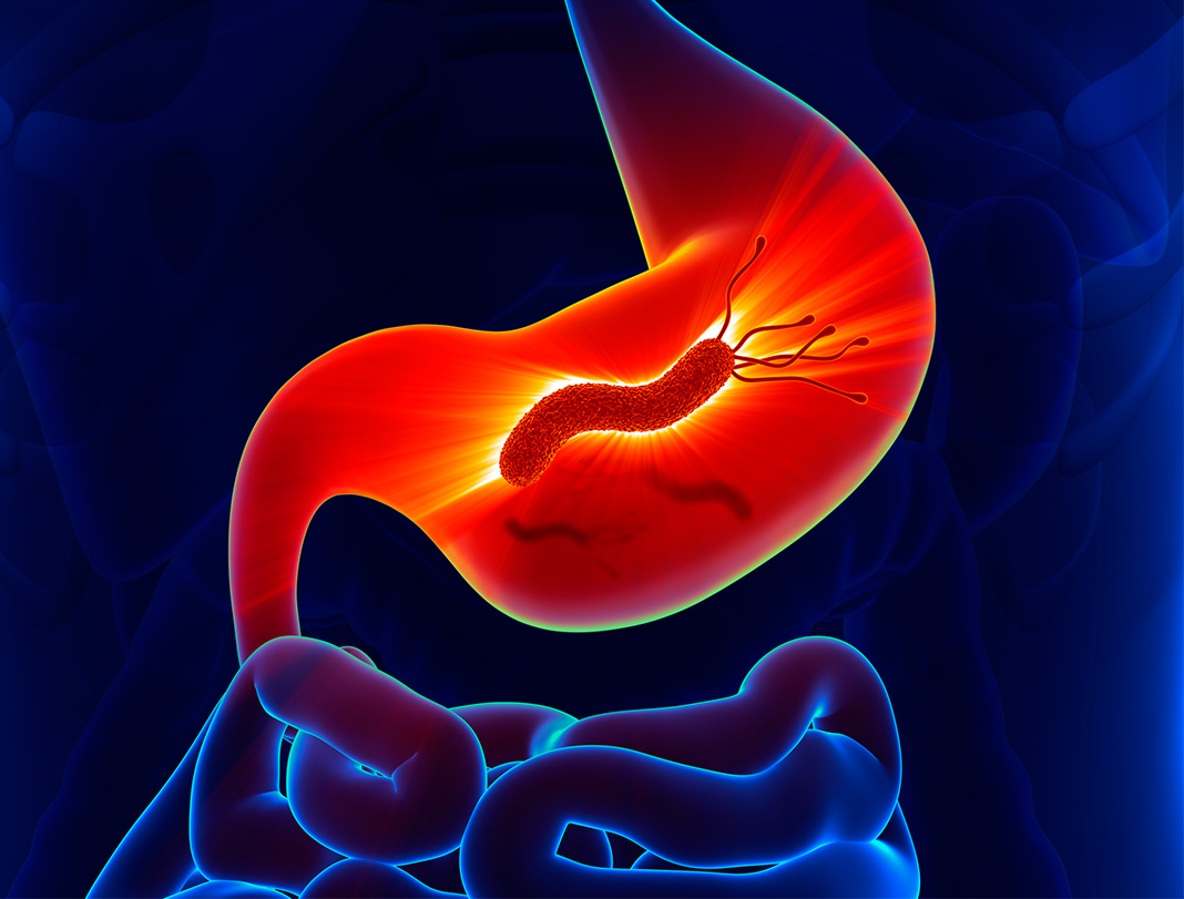 h pylori, gut health, gut infection