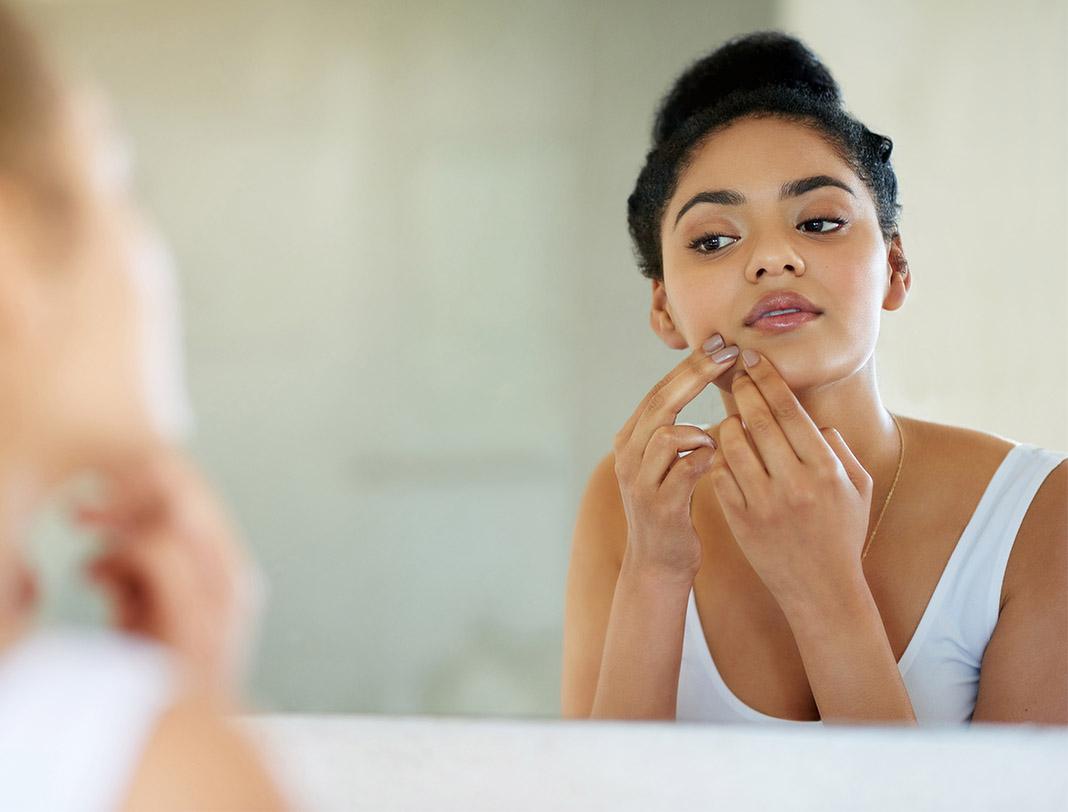 skin, acne