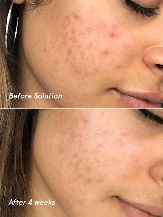 Glossier acne solution