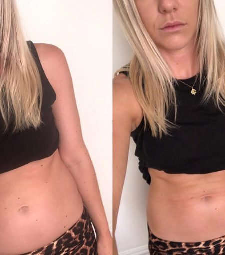 I Tried This Lymphatic Ab Sculpting Massage—The Results Were Surprising