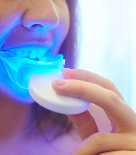 The Rise Of At-Home Teeth Whitening Products: What To Be Weary Of
